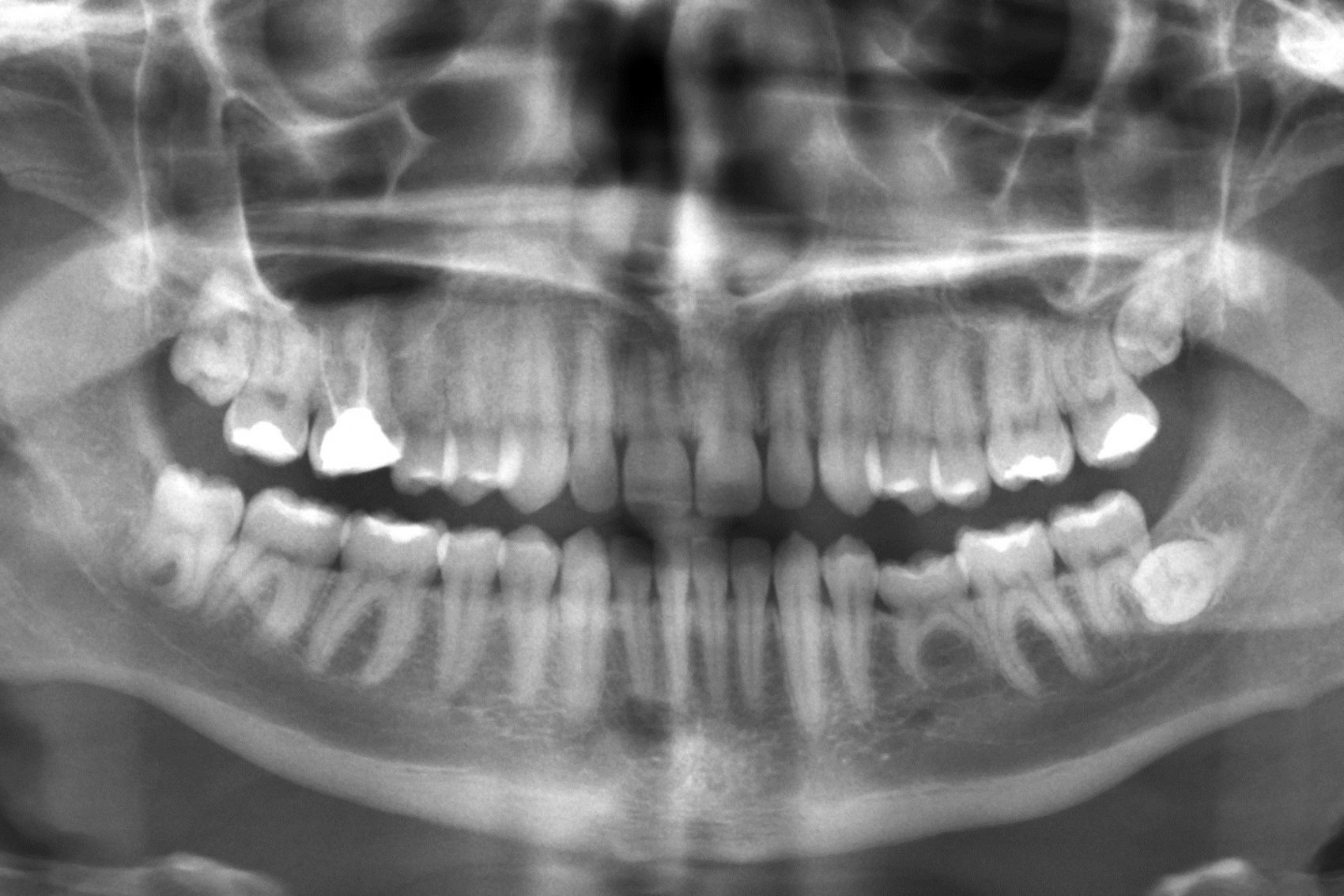 What do your teeth say about us? (Public Domain)