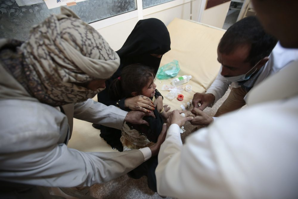 A girl is treated for a suspected cholera infection at a hospital in Sanaa, Yemen, Saturday, Jul. 1, 2017. The World Health Organization says a rapidly spreading cholera outbreak in Yemen has claimed 1,500 lives since April and is suspected of infecting 246,000 people. (Hani Mohammed/AP)