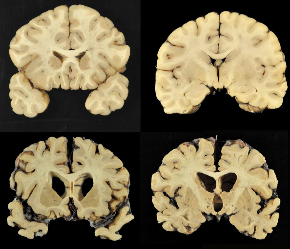 This combination of photos provided by Boston University shows sections from a normal brain, top, and from the brain of former University of Texas football player Greg Ploetz, bottom, in stage IV of chronic traumatic encephalopathy. According to a study released Tuesday, research on the brains of 202 former football players has confirmed what many feared in life: evidence of CTE, a devastating disease in nearly all the samples, from athletes in the NFL, college and even high school. (Dr. Ann McKee/BU via AP)