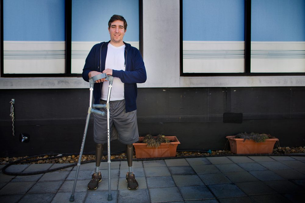 Boston Marathon bombing victim Jeff Bauman. (Jesse Costa/WBUR)