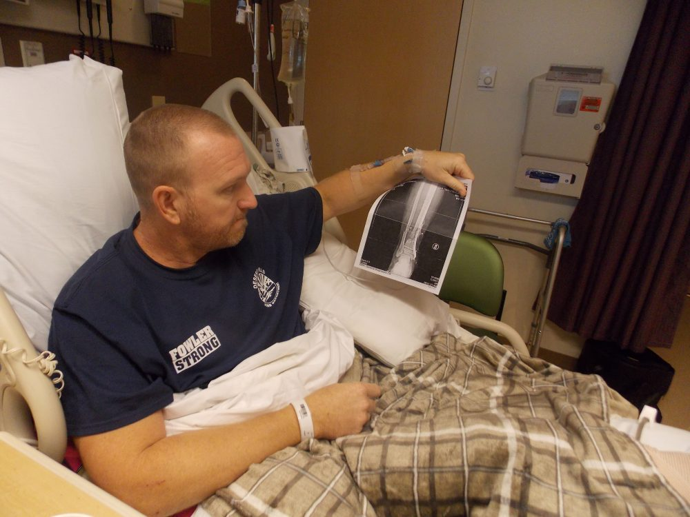 Kurt Fowler looks at an X-ray of his ankle as he sits in a hospital bed at Sunrise Hospital & Medical Center. Fowler, a firefighter from Arizona, got shot in the ankle and said he expects to be out of work for months as he recovers. (Anna Gorman/KHN)