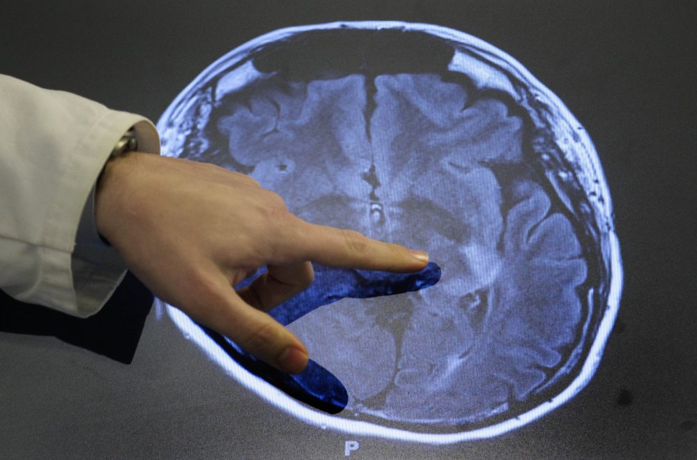 A doctor points to spots of possible damage caused by a stroke on a brain scan at Johns Hopkins Hospital in Baltimore. (Patrick Semansky/AP)