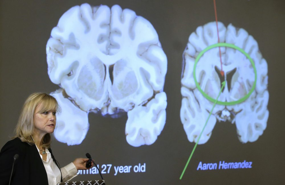 Ann McKee, director Boston University's center for research into the degenerative brain disease chronic traumatic encephalopathy, or CTE, addresses an audience on the school's campus Thursday about the study of NFL football player Aaron Hernandez's brain. (Steven Senne/AP)
