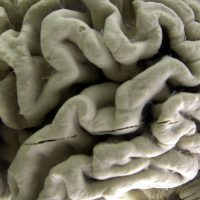 In this 2003 file photo, a section of a human brain with Alzheimer's disease is on display at the Museum of Neuroanatomy at the University at Buffalo. (David Duprey/AP)