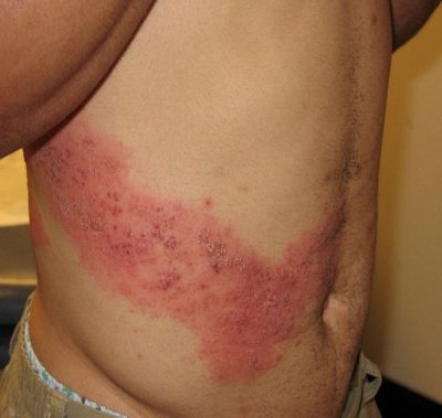 Shingles (Courtesy of NIAID via CDC)