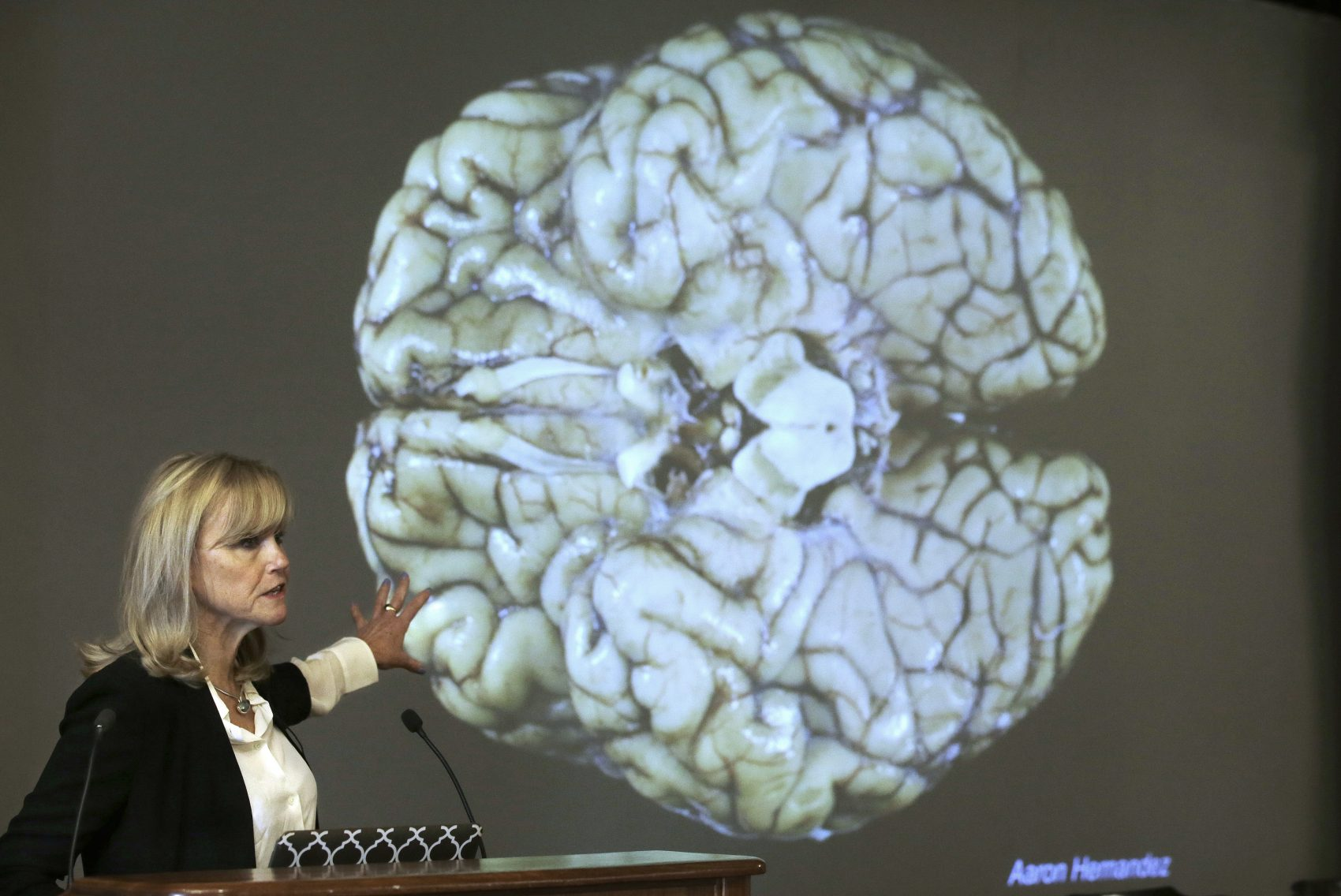 Ann McKee, director Boston University's center for research into the degenerative brain disease chronic traumatic encephalopathy speaks last November about the study of NFL football player Aaron Hernandez's brain, projected on a screen behind, in Boston. Researchers believe Hernandez suffered from CTE. (Steven Senne/AP)