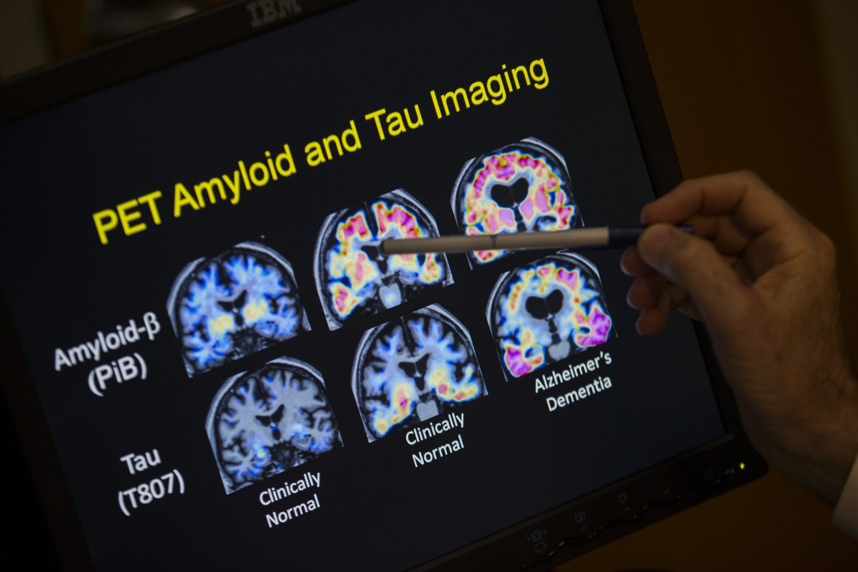R. Scott Turner, professor of neurology and director of the Memory Disorder Center at Georgetown University Hospital, points to PET scan results that are part of a study on Allheimer's disease on May 19, 2015, in Washington. (Evan Vucci/AP)