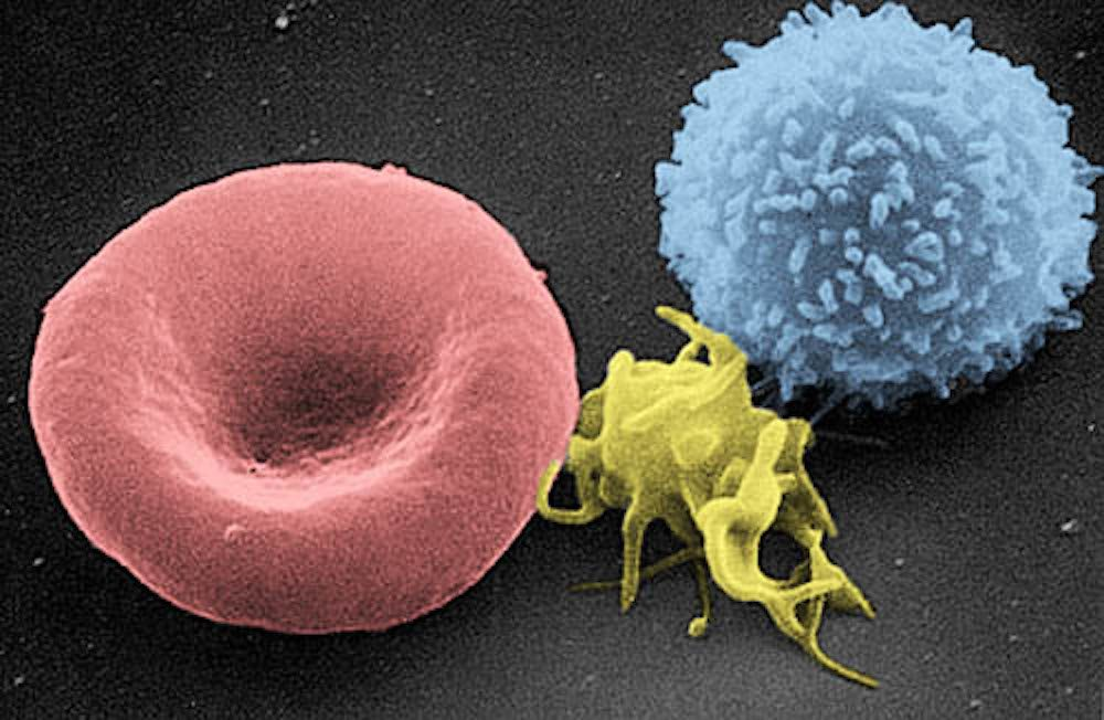 A platelet (yellow) is flanked by a red blood cell (left) and a white blood cell (right) in this electron microscope view. (WikiMedia Commons)