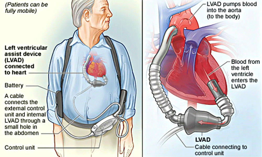 About That Heart Device Your Doctor Recommends: Are You Sure