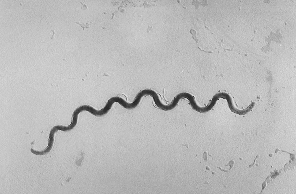 This 1972 microscope image provided by the Centers for Disease Control and Prevention shows a Treponema pallidum bacterium which causes the disease syphilis. A report released on Tuesday, Sept. 25, 2018, says that newborn syphilis infections are surging to the highest level in 20 years. (Susan Lindsley/CDC via AP)