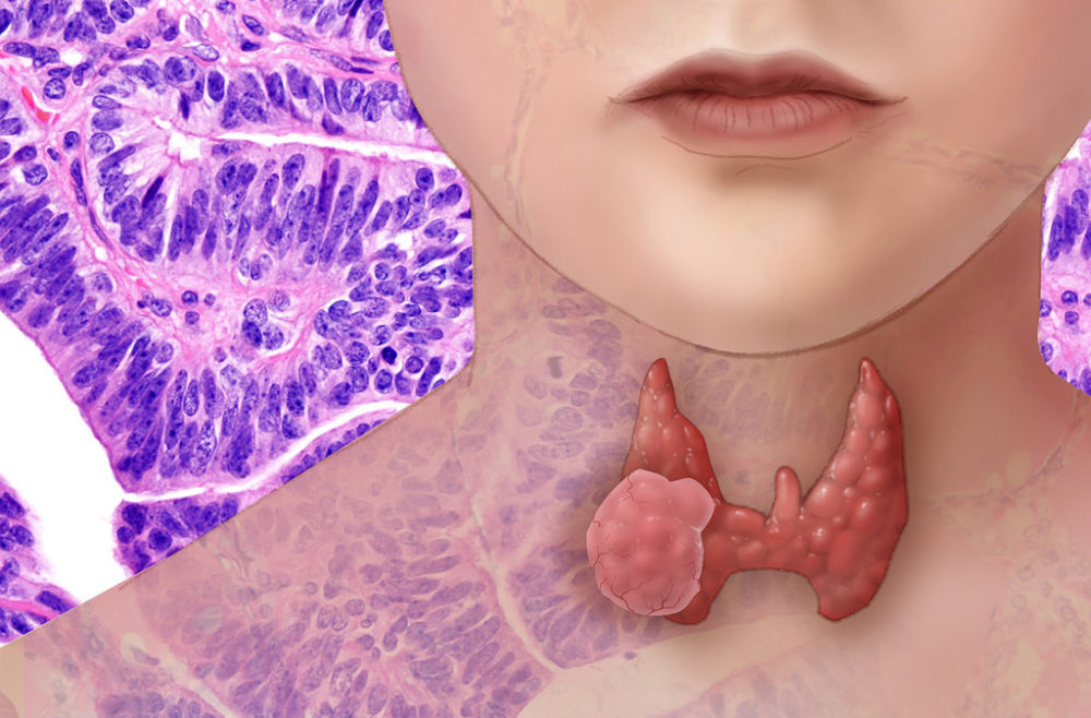 Thyroid cancer (National Human Genome Research Institute/Flickr)