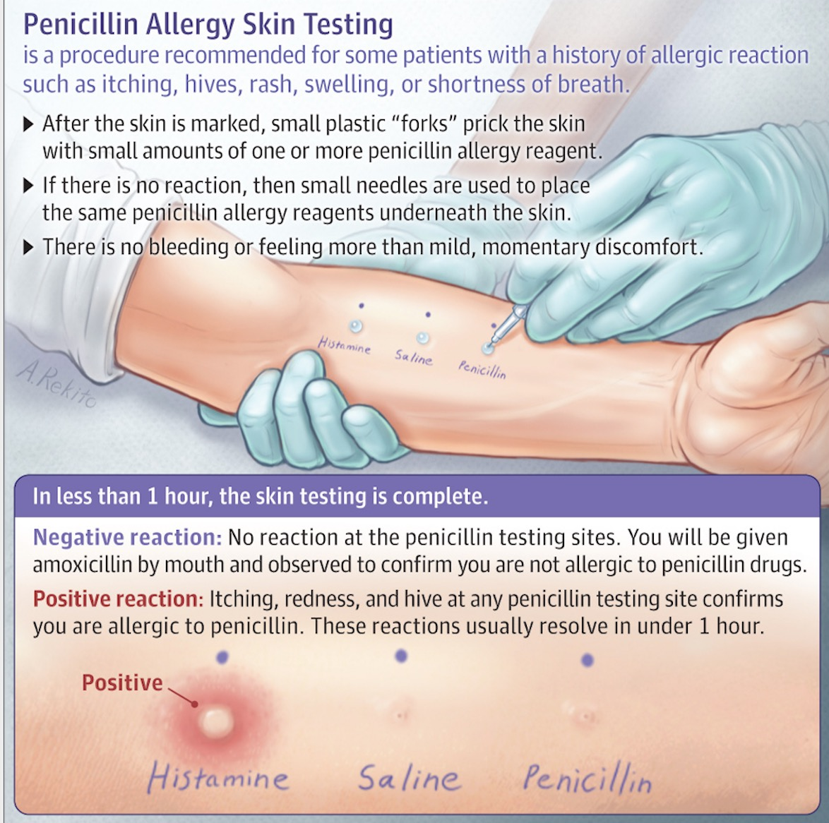 Think You're Allergic To Penicillin? Maybe Not, Specialists
