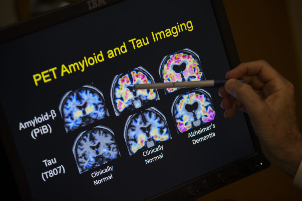 Tau and amyloid proteins are visible on brain scans in this 2015 file photo. (Evan Vucci/AP)