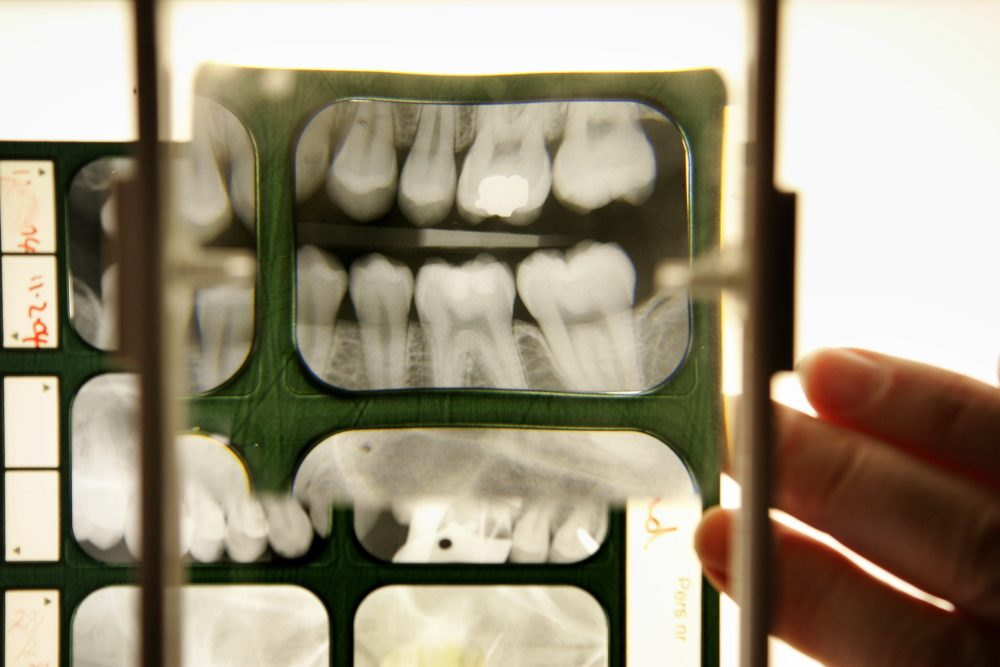 Many unaccompanied migrants who claim to be under 18 years old must undergo a dental exam. (Peter Macdiarmid/Getty Images)