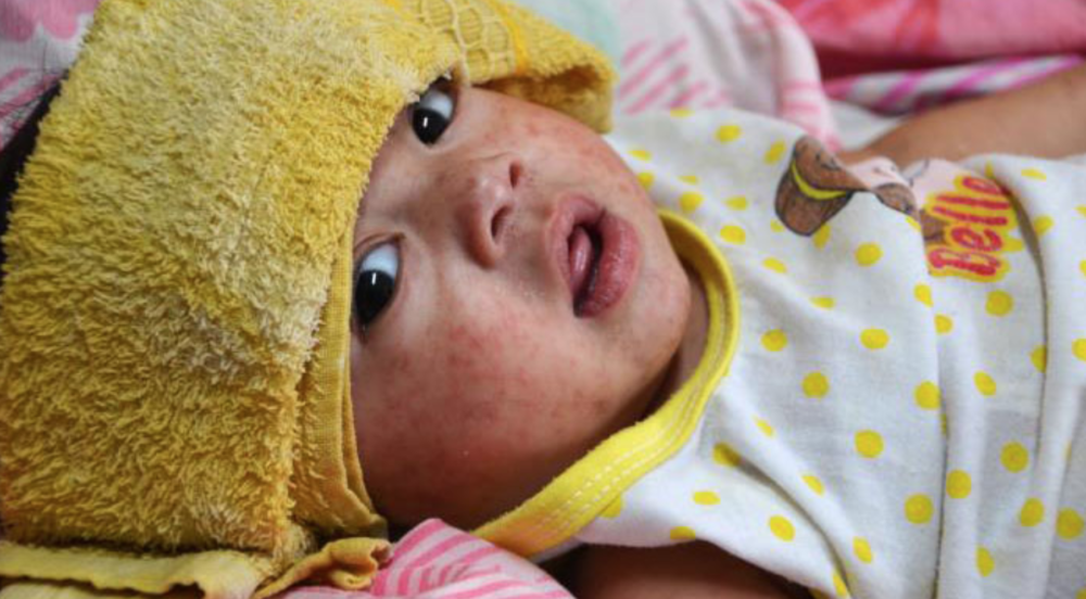 Child with measles (CDC)