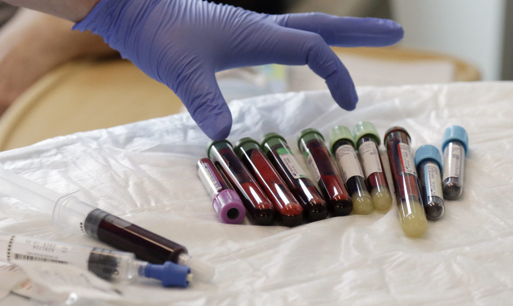 A nurse reaches for blood samples taken from a patient receiving immunotherapy. (Elaine Thompson/AP)