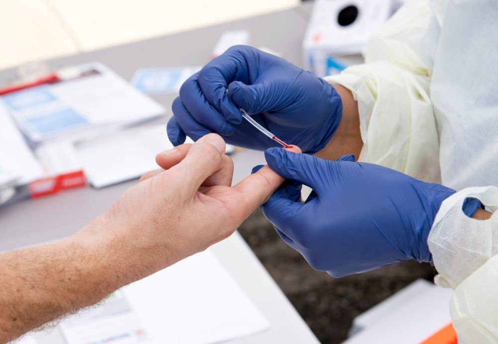 A health worker takes a drop of blood for the COVID-19 antibody test after at the Diagnostic and Wellness Center on May 5, 2020, in Torrance, California. (Valerie Macon/AFP/Getty Images)
