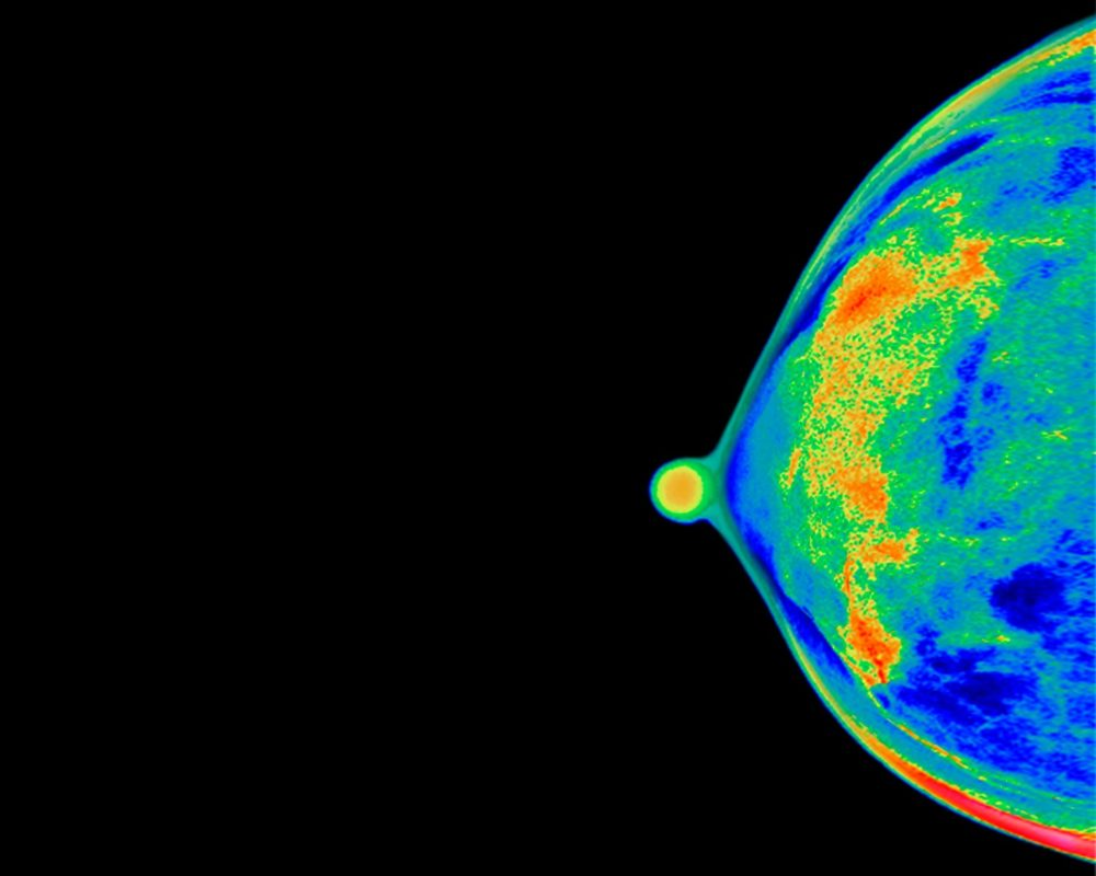 The mammogram of a 40-year-old woman's breast. (Peter Dazeley/The Image Bank for Getty Images)